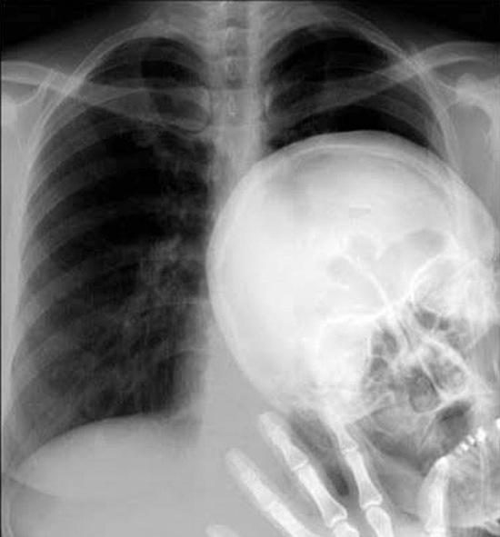 radiografia calavera saludando