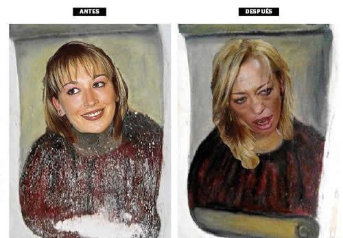 Belén Esteban - Antes y después