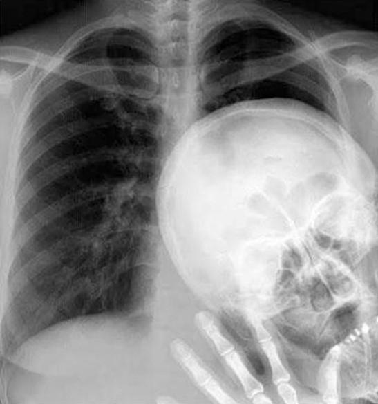 Radiografía con el típico pesado que siempre quiere salir en las fotos